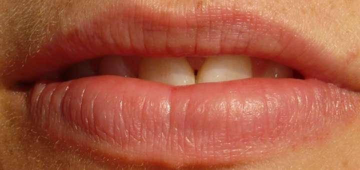 léčba zubního kazu bez vrtání